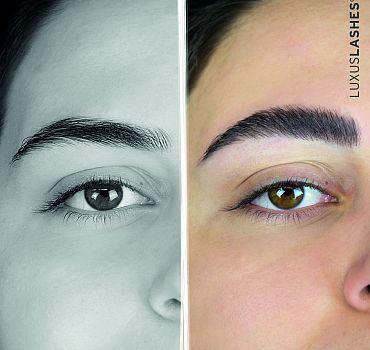 Augenbrauenlifting vorher/nachher